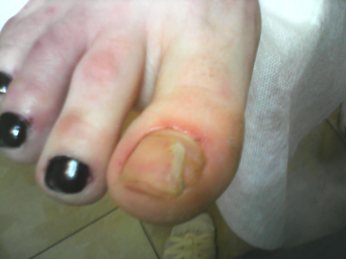 Грибок ногтей на ногах препарат лоцерил отзывы
