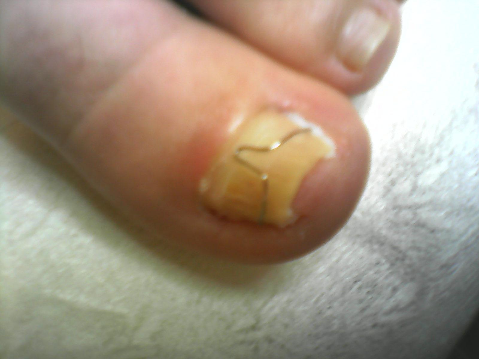 Вылечить нарыв под ногтем