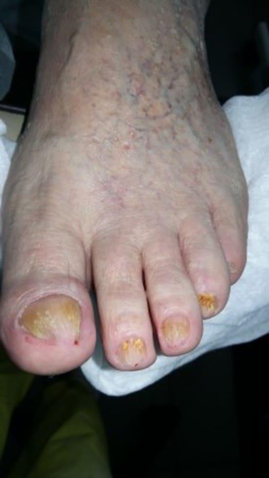 Самое эффективное средство от грибка на стопах ног