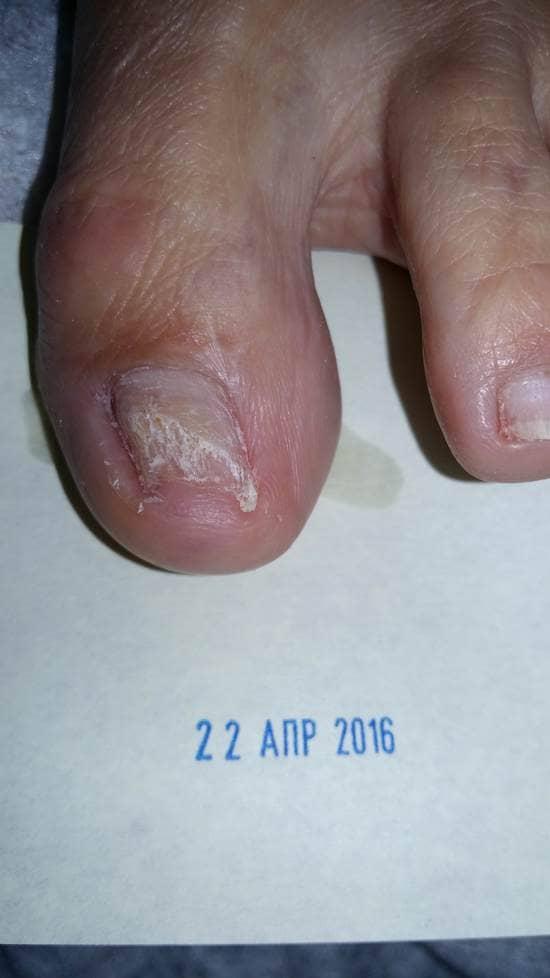 Грибок ногтя убить лазером