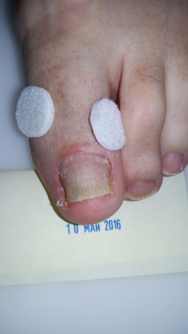 Лечение вросшего ногтя в санатории