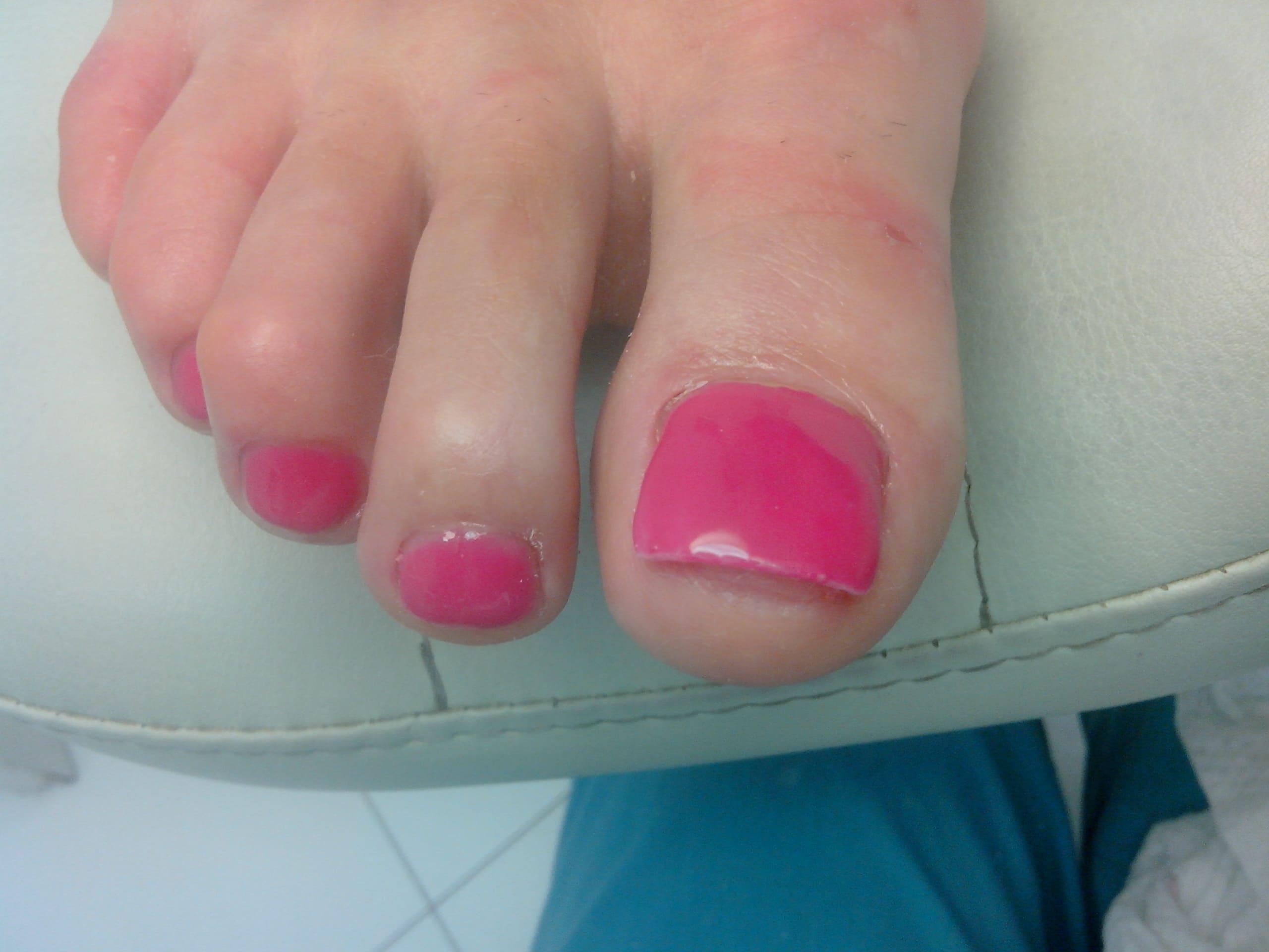 Нарастить ногти на ногах фото до и после