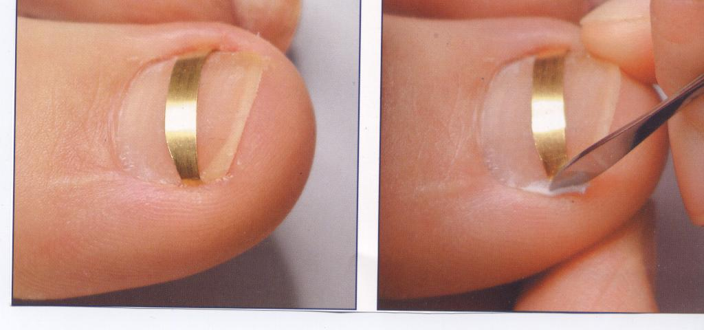 Скобы для коррекции вросшего ногтя 3