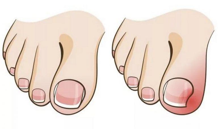 Скобы для коррекции вросшего ногтя 4